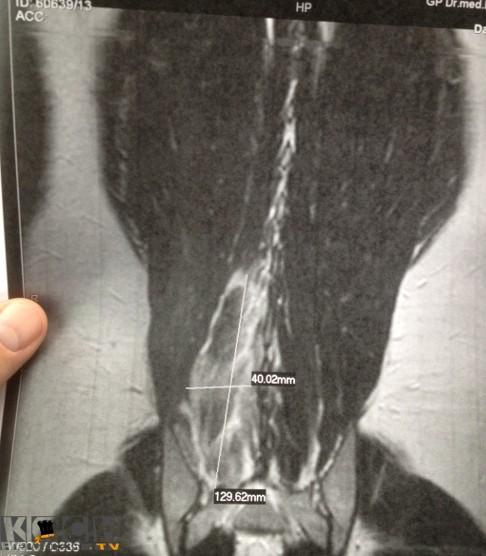 Rueckenverletzung